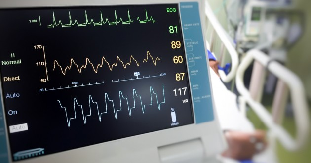 A closeup of an EKG monitor displaying vital signs.